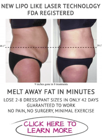 Weight Loss O'Fallon MO Laser Offer
